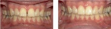 Patient 2_Veneers_Before and After