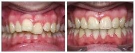 before and after braces2