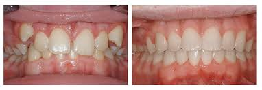 before and after braces3