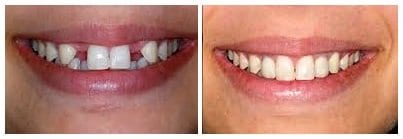 before-and-after-dental-implants1