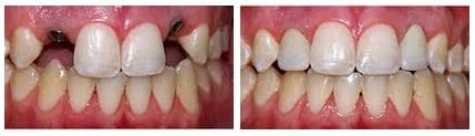 before-and-after-dental-implants4