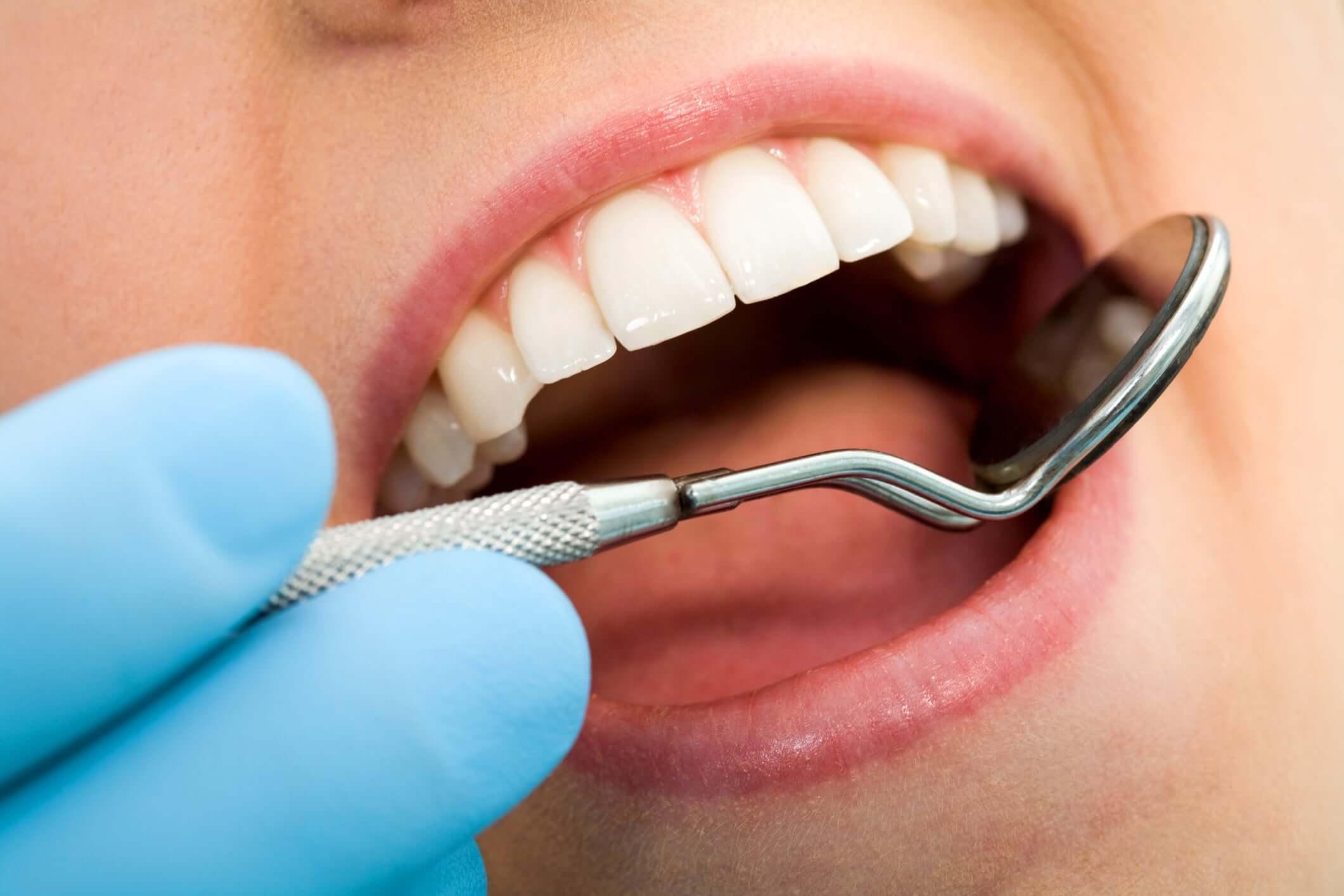 Dental Fillings, Smile Envy Dental Group, Atlanta, GA