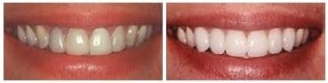 before-and-after-whitening3