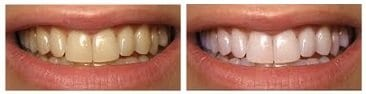 smile-envy-whitening-before-and-after