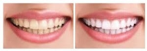 smile-envy-whitening2-before-and-after