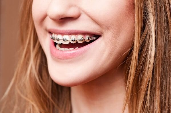 FAQ's on Braces & Invisalign®